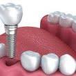 Beneficiile celei mai moderne si eficiente metode de inlocuire a dintilor – implantul dentar
